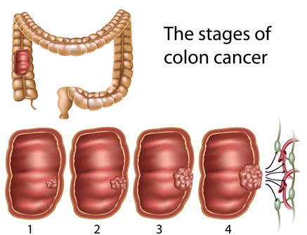 Colorectal Cancer Alternative Treatments Dr Adrian Md