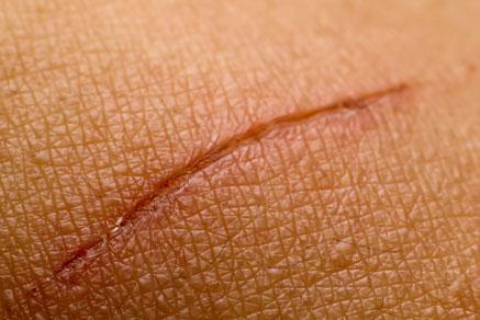 Scars &
